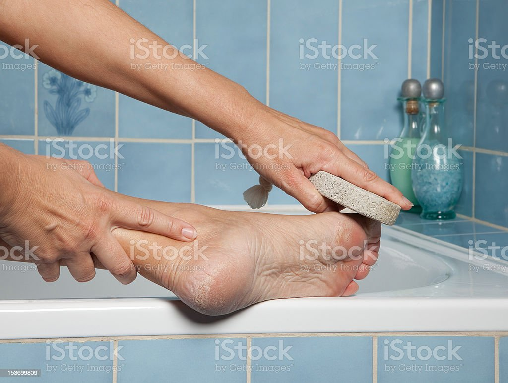 Callous feet and pumice stone stock photo