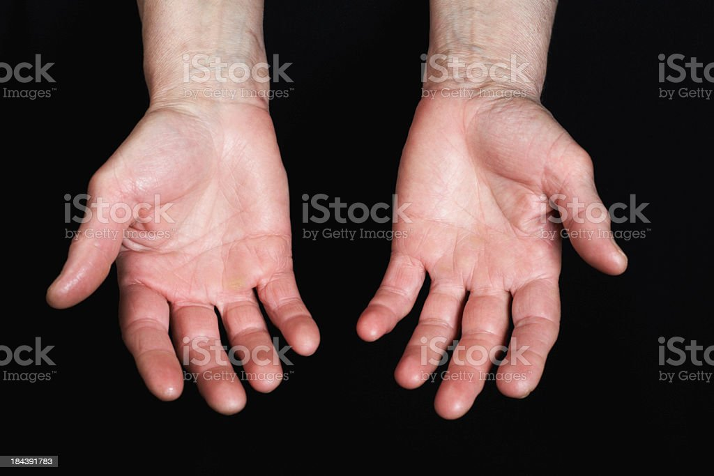 Calloused hands stock photo