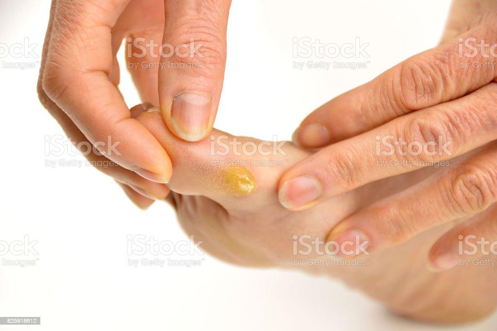 Callus on toe stock photo