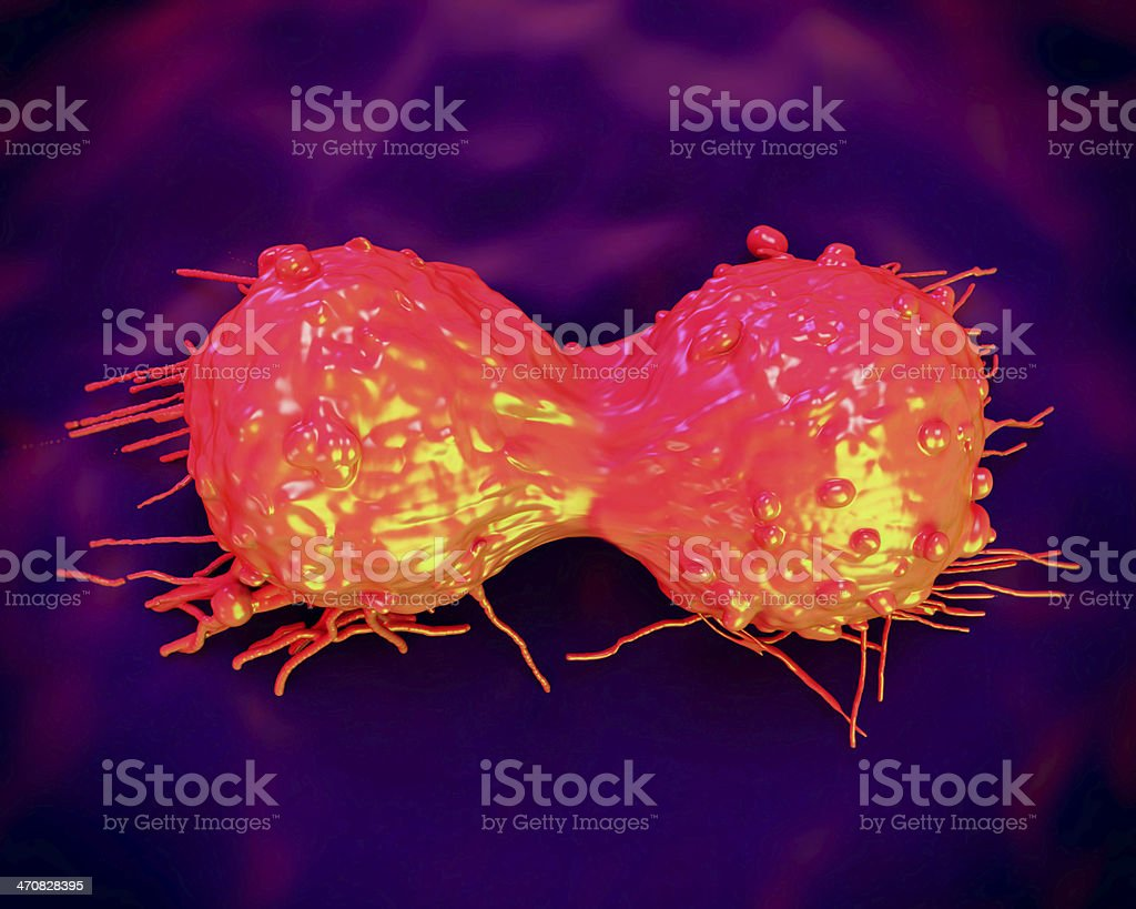 cancer cell, SEM of Cervical Carcinoma stock photo