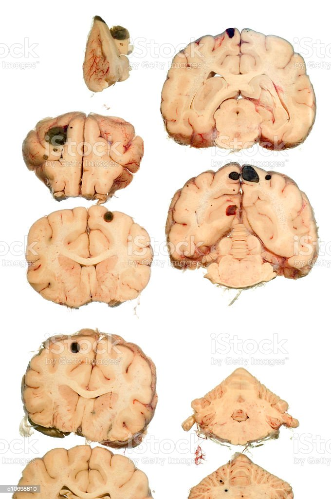 Cancer in dogs brain stock photo