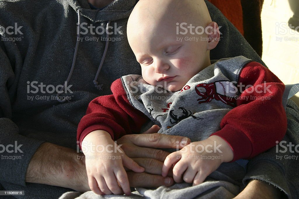 Cancer Kids; Tired and Held royalty-free stock photo