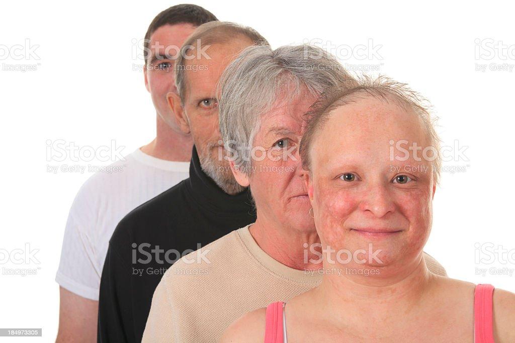 Cancer Survivor - Portrait People royalty-free stock photo
