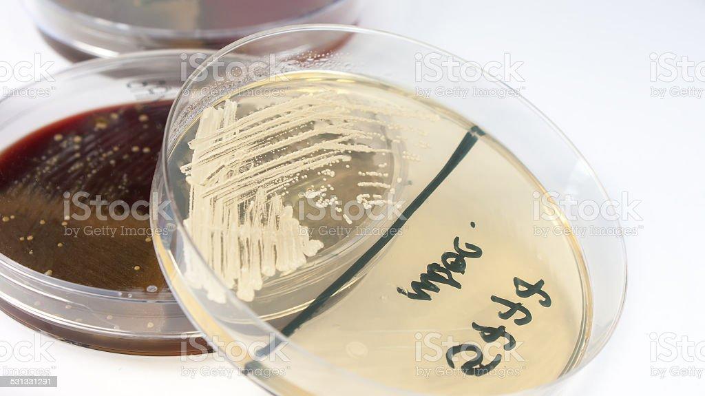 Candida albicans fungus on petri dish stock photo