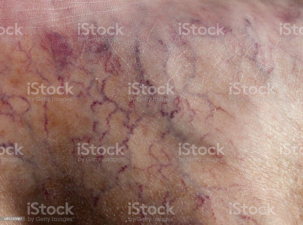 Capillaries stock photo