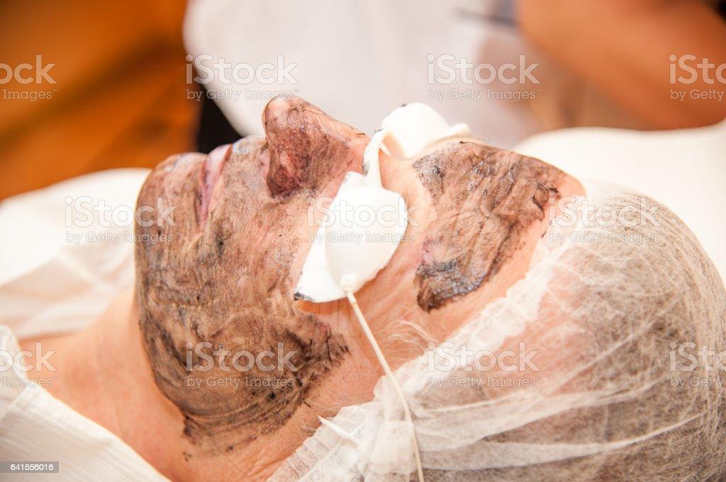 carbon laser treatment skin / laser treatment stock photo