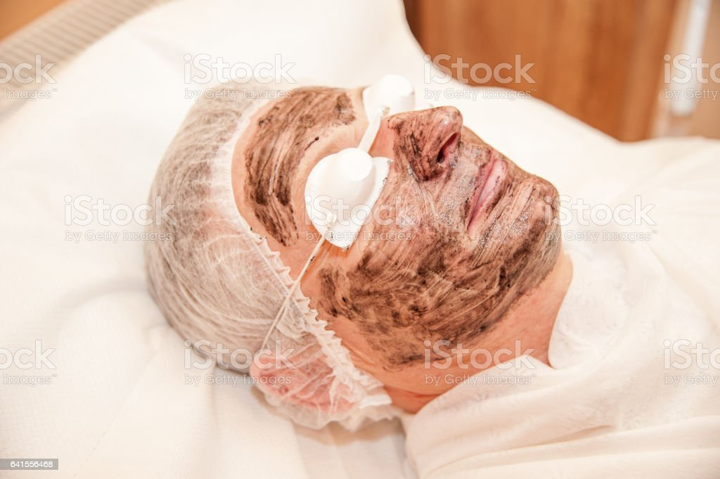 carbon laser treatment skin / laser treatment stock photo