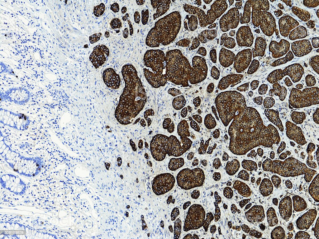 Carcinoid tumor of the ileum, Synaptophysin immunostain stock photo