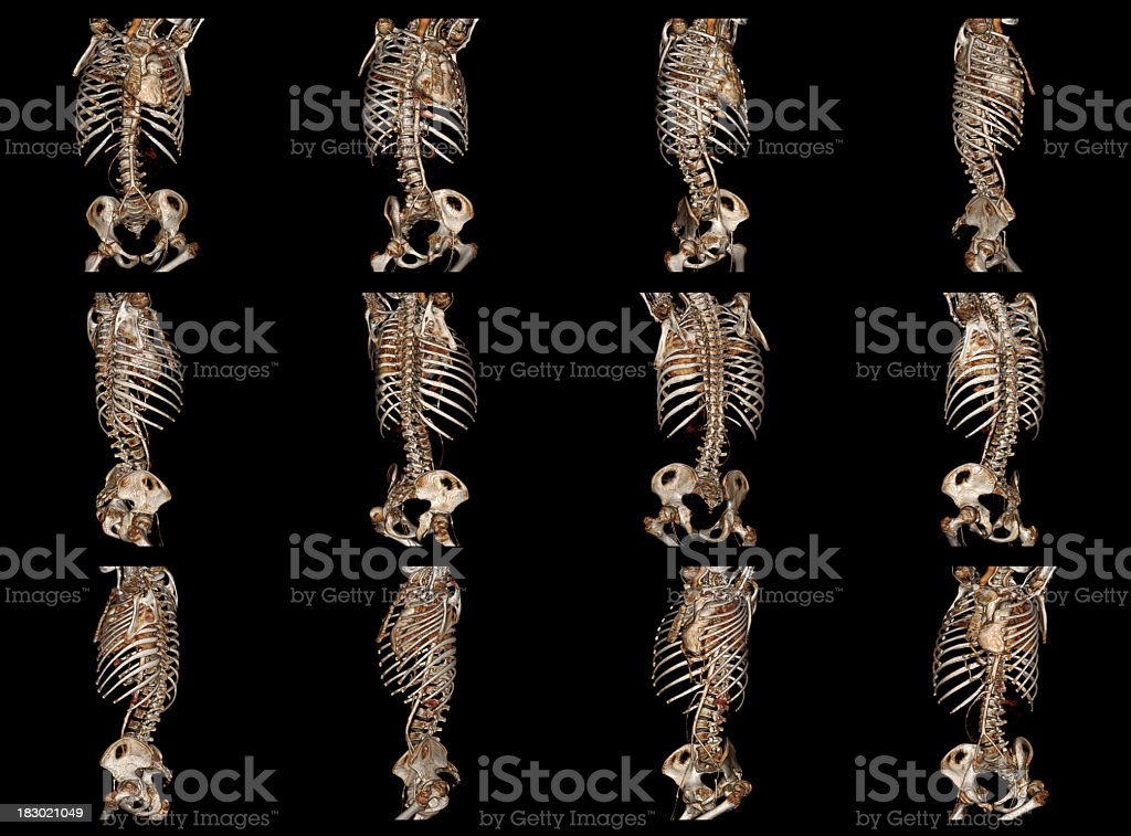 Cardiac CT Angiography and Human Chest stock photo