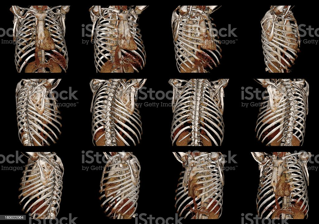Cardiac CT Angiography and Human Chest royalty-free stock photo
