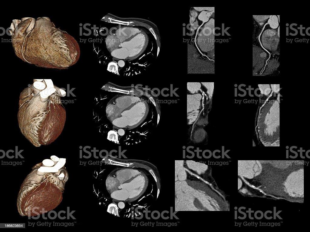 Cardiac CT stock photo