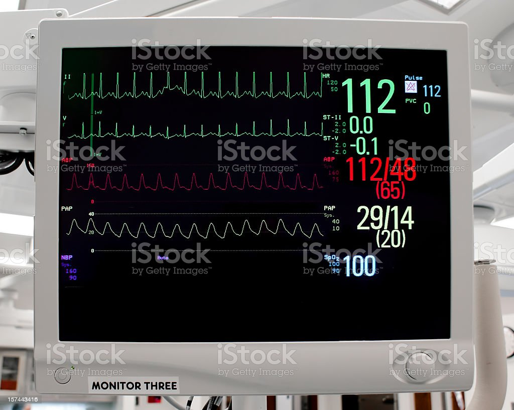 Cardiac Monitor with Vital Signs: EKG, Pulse Oximetry, Blood Pressure stock photo