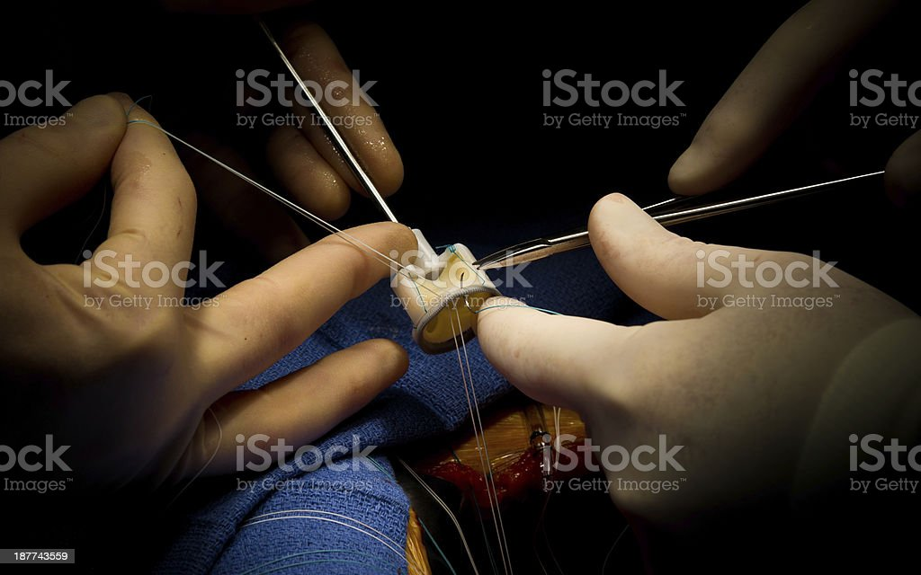 Cardiac Surgery Aortic Valve Replacement stock photo