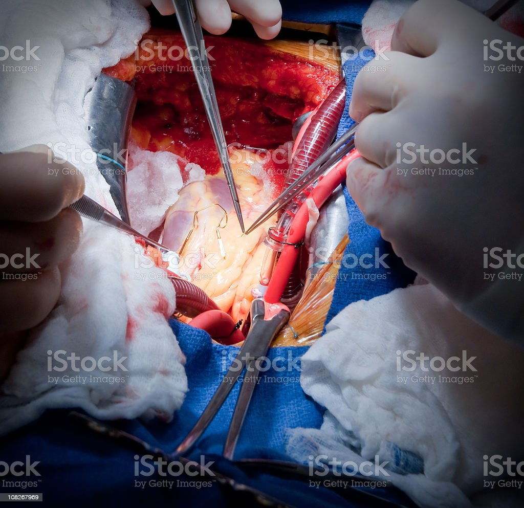 Cardiac Surgery CABG stock photo