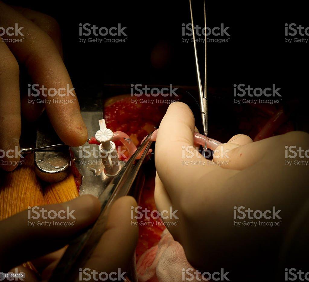 Cardiac Surgery - Vein Graft Preparation stock photo