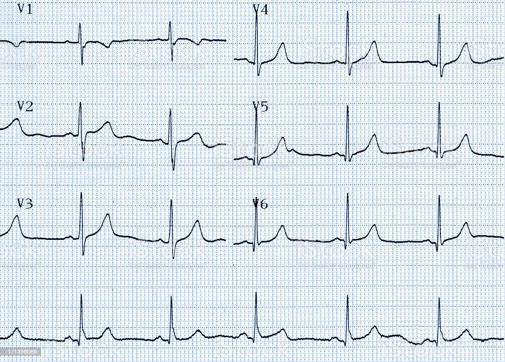 Cardiogram Chart (ECG) royalty-free stock photo