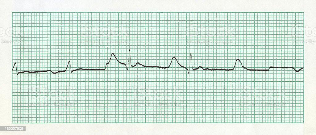Cardiogram Chart (ECG) stock photo