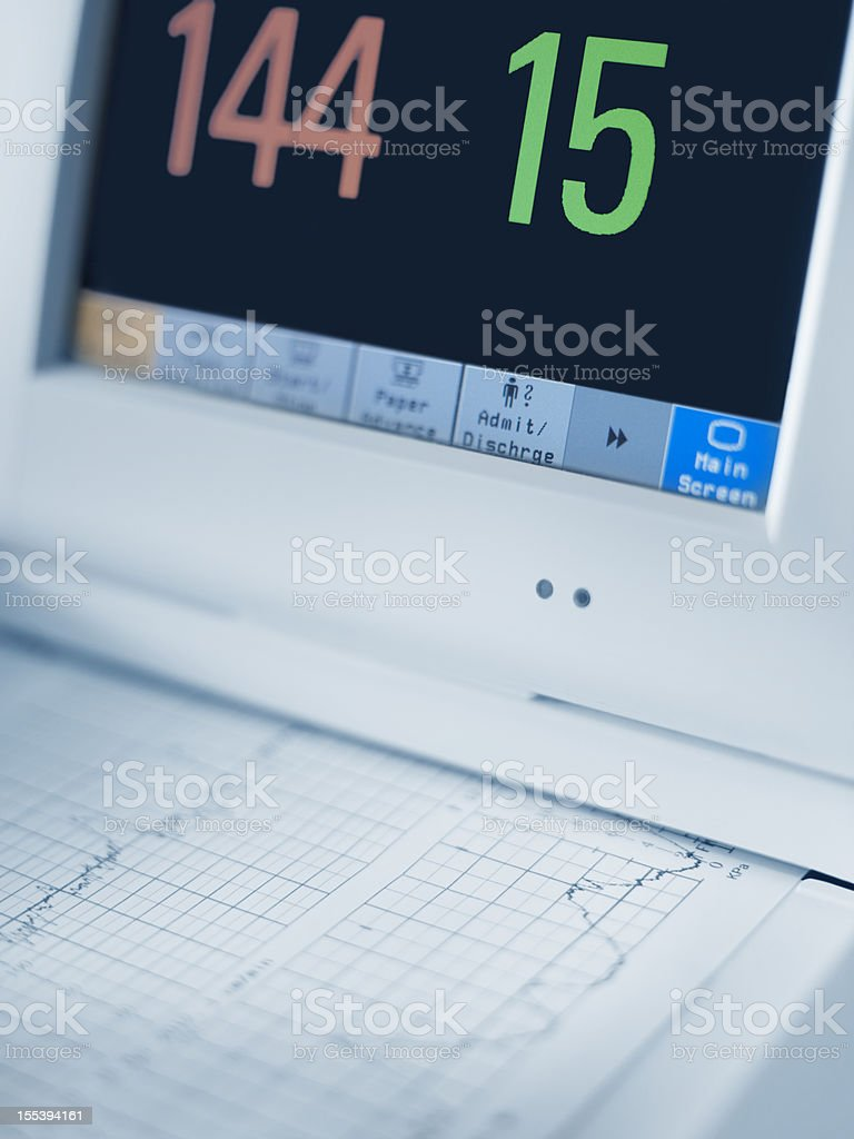 Cardiogram machine, close-up royalty-free stock photo