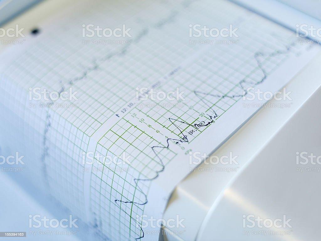 Cardiogram machine, close-up royalty-free stock photo