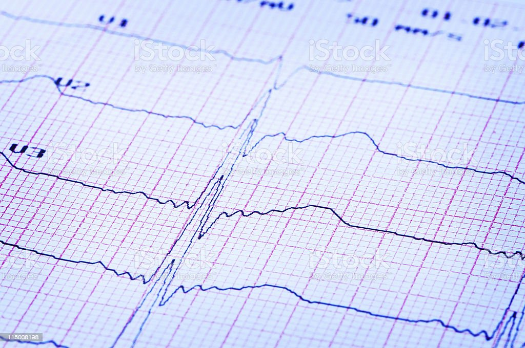 Cardiogram of heart on paper. royalty-free stock photo