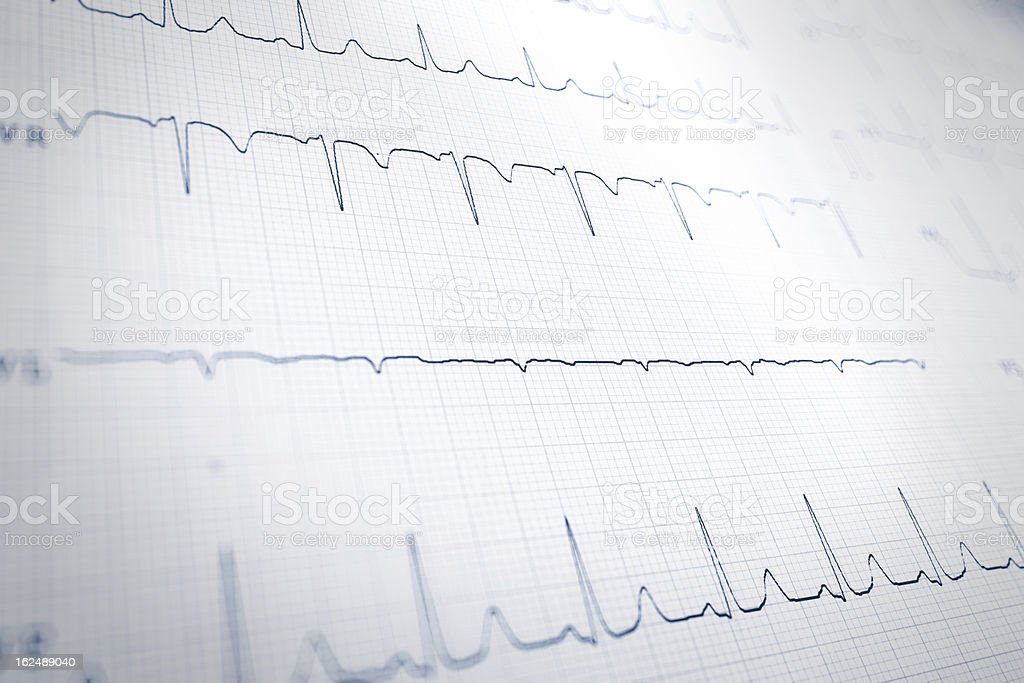 cardiogram stock photo