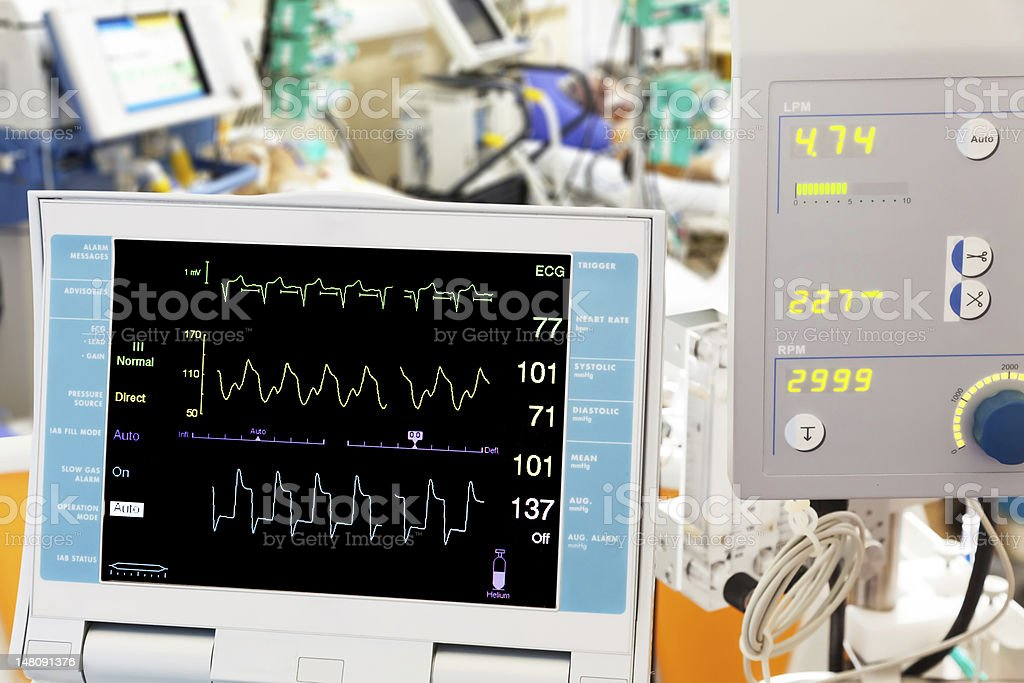 cardiogram with ECMO and intra-aortic balloon counterpulsation in ICU stock photo