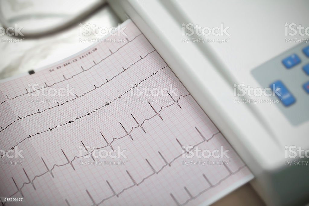 Cardiography. Method in medicine. stock photo
