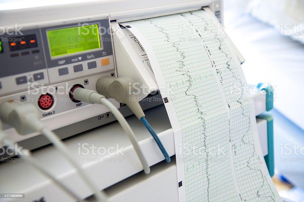 Cardiotocography (CTG) stock photo