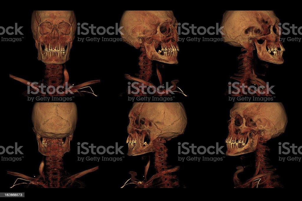 Carotid Artery CT Angiography stock photo