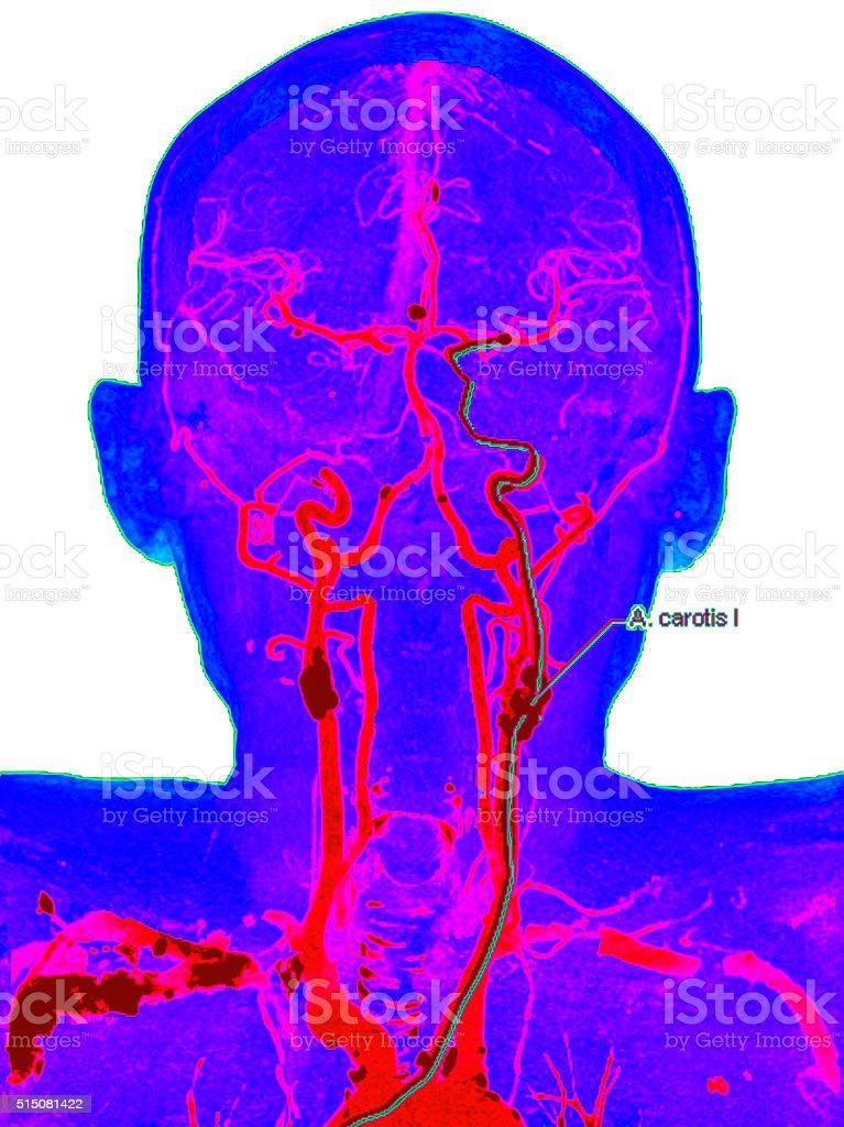 Carotid artery disease stock photo