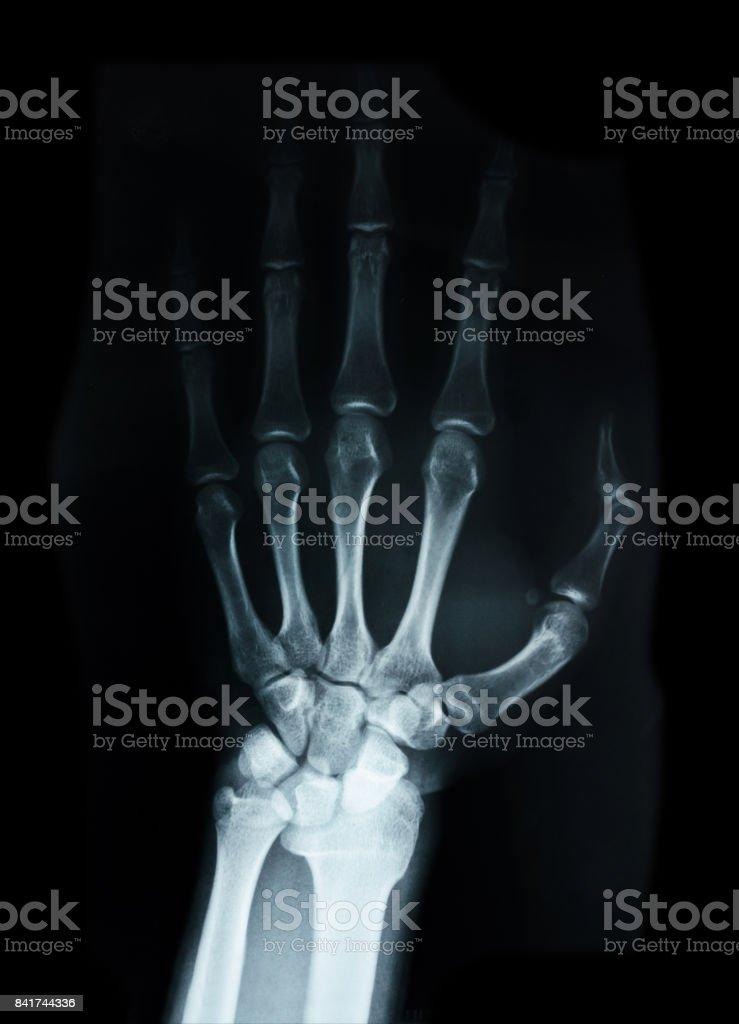 Huesos Del Carpo Humano De Rayos X Stock Foto e Imagen de Stock ...