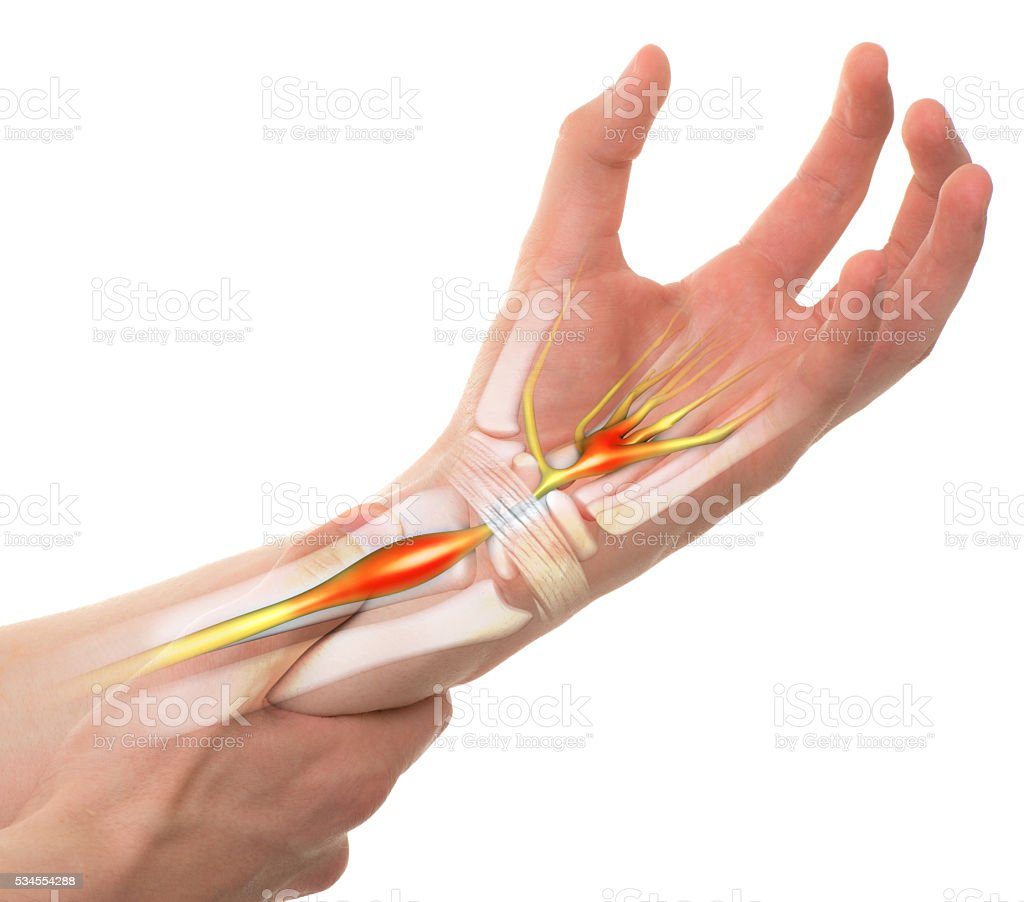 Carpal Tunnel Syndrome - Wrist Pain isolated stock photo