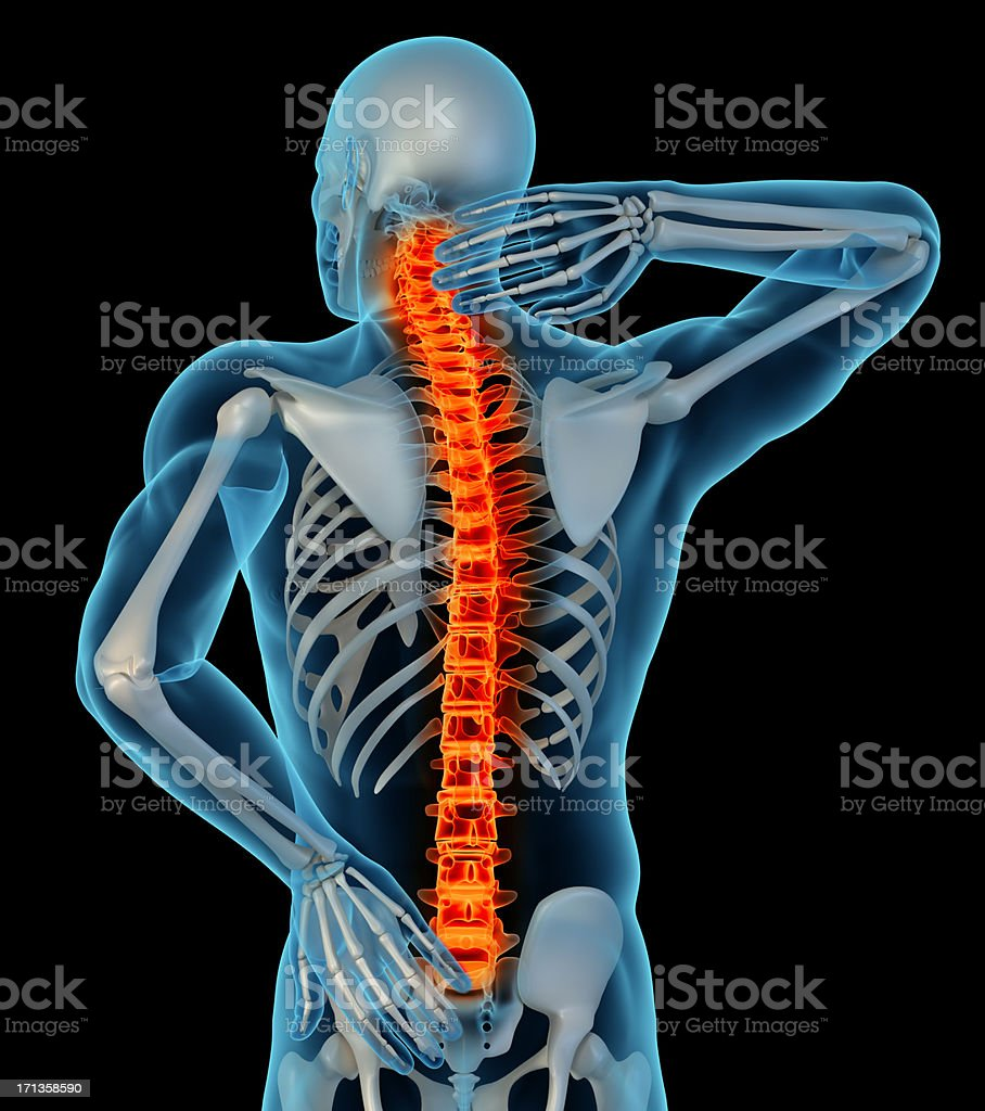 Cartoon showing a man with back pain stock photo