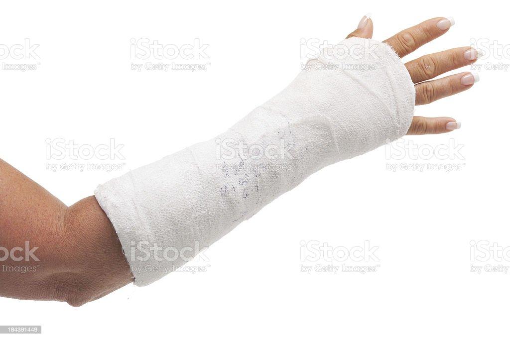 cast arm stock photo