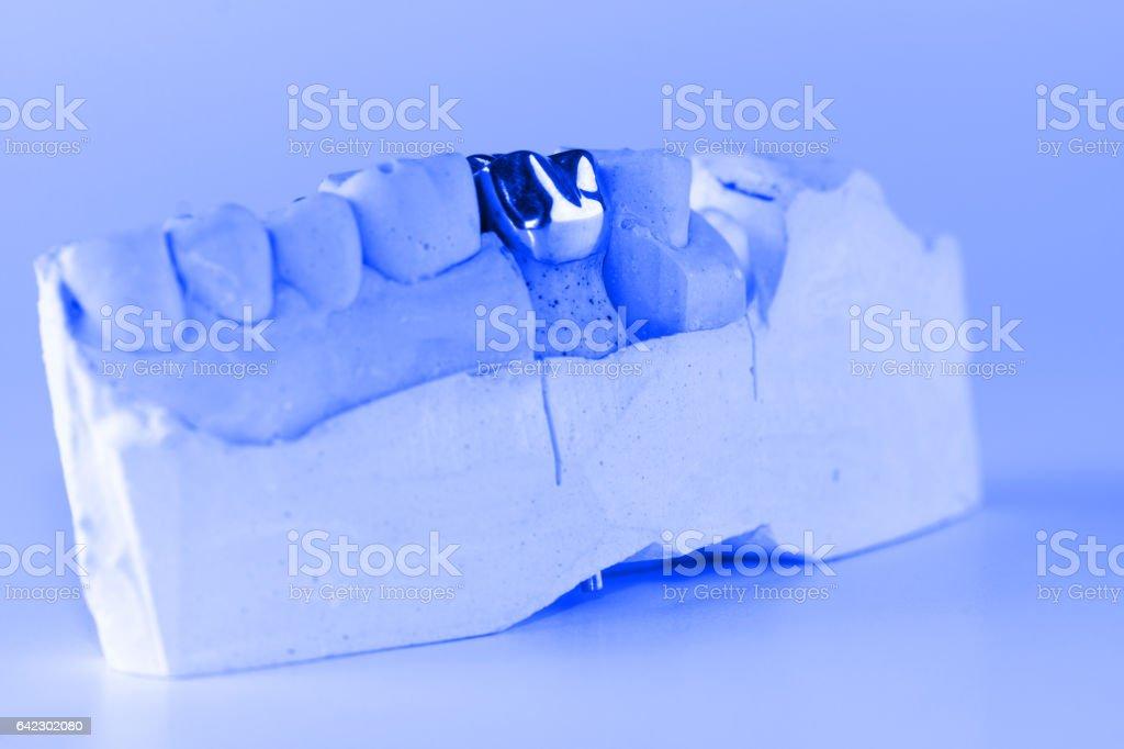 cast metal dental crown stock photo