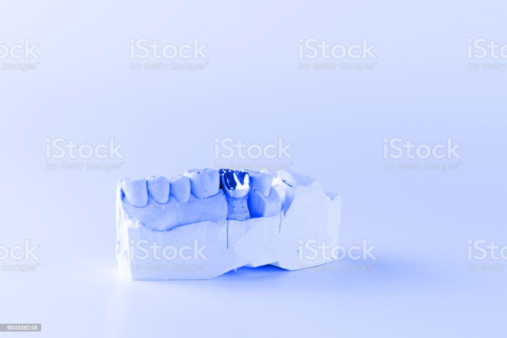 cast metal dental crown stock photo