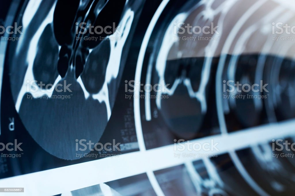 Cat scan close-up stock photo
