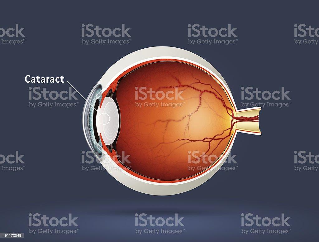 Cataract royalty-free stock photo