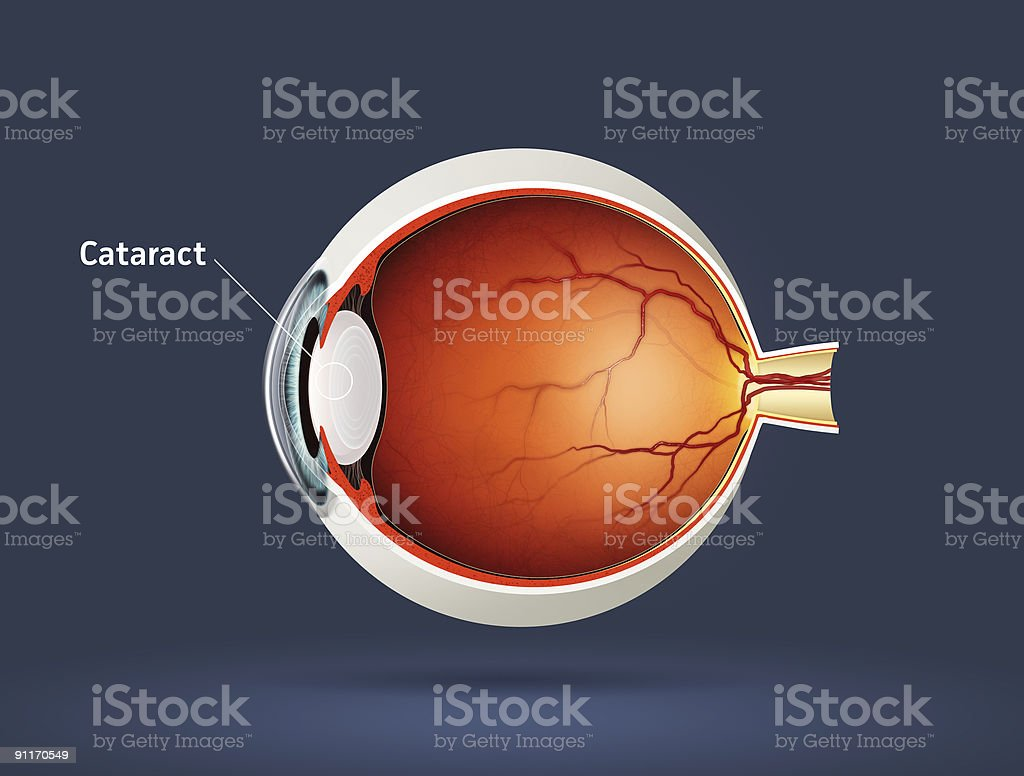 Cataract stock photo