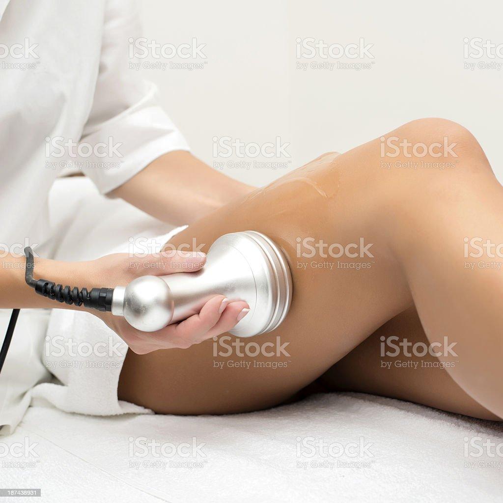 Cavitation treatment stock photo