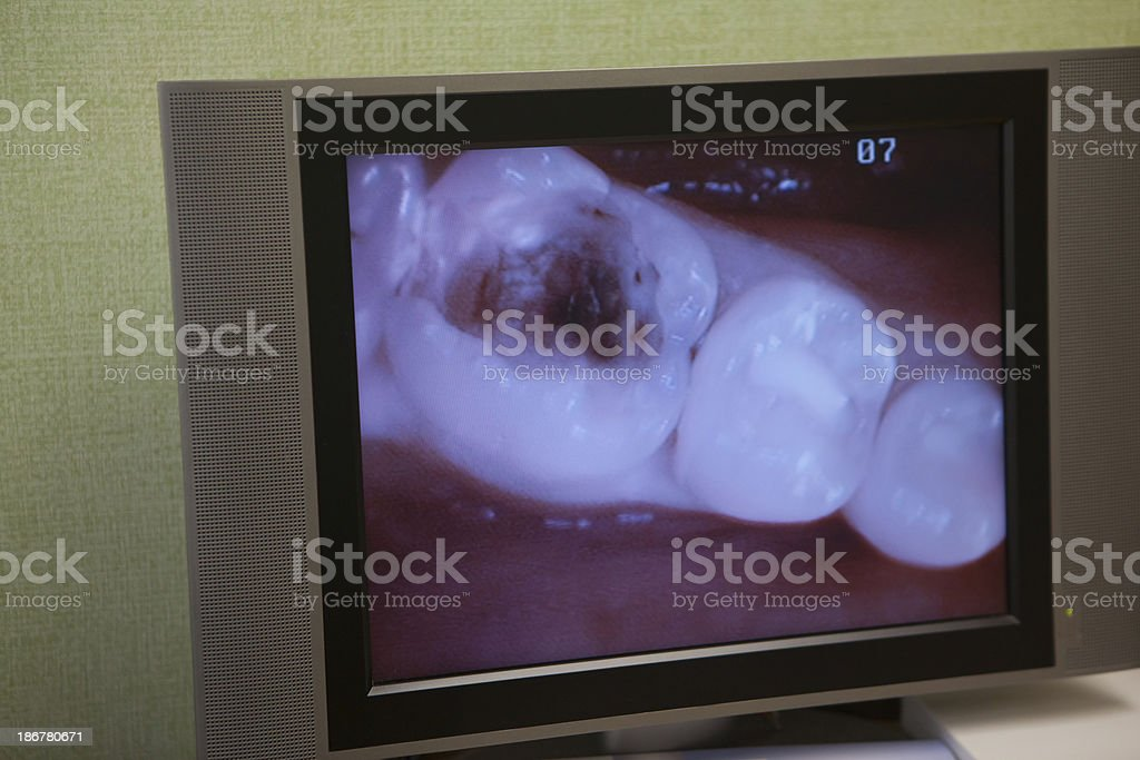 Cavity royalty-free stock photo