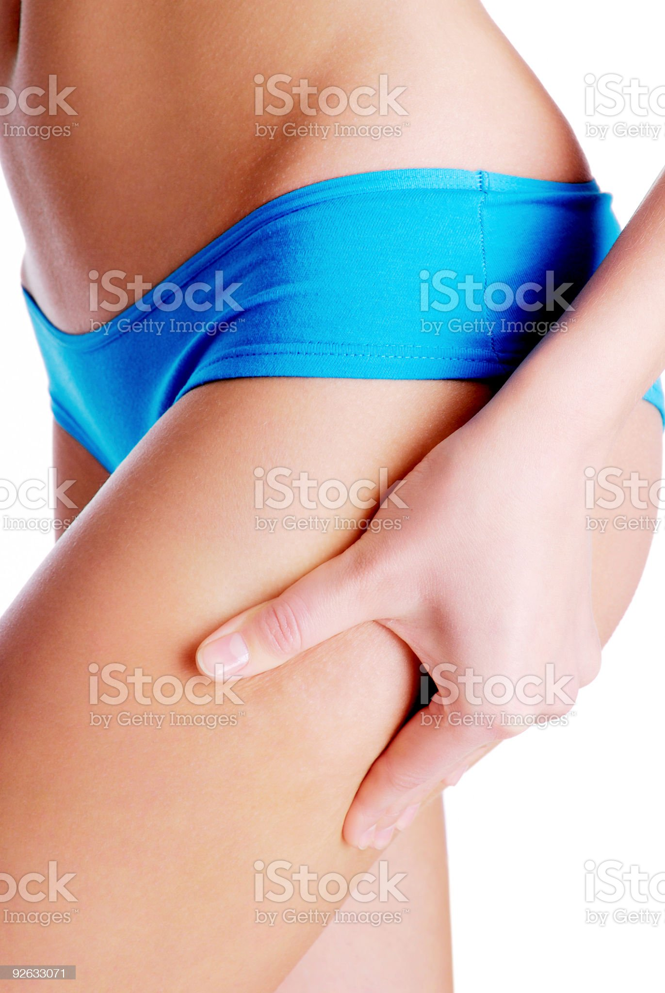 Cellulite on human legs royalty-free stock photo