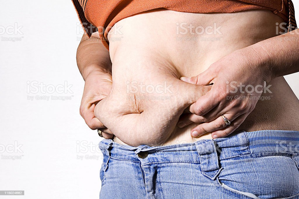 cellulite on stomach royalty-free stock photo