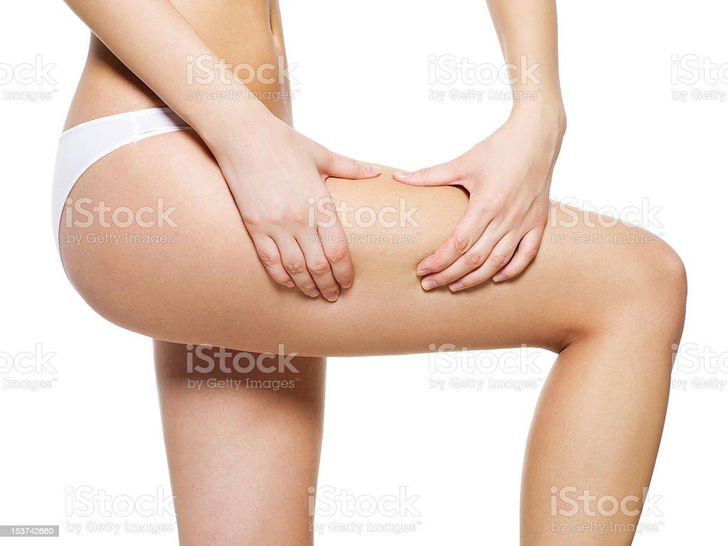 cellulite skin on her legs stock photo