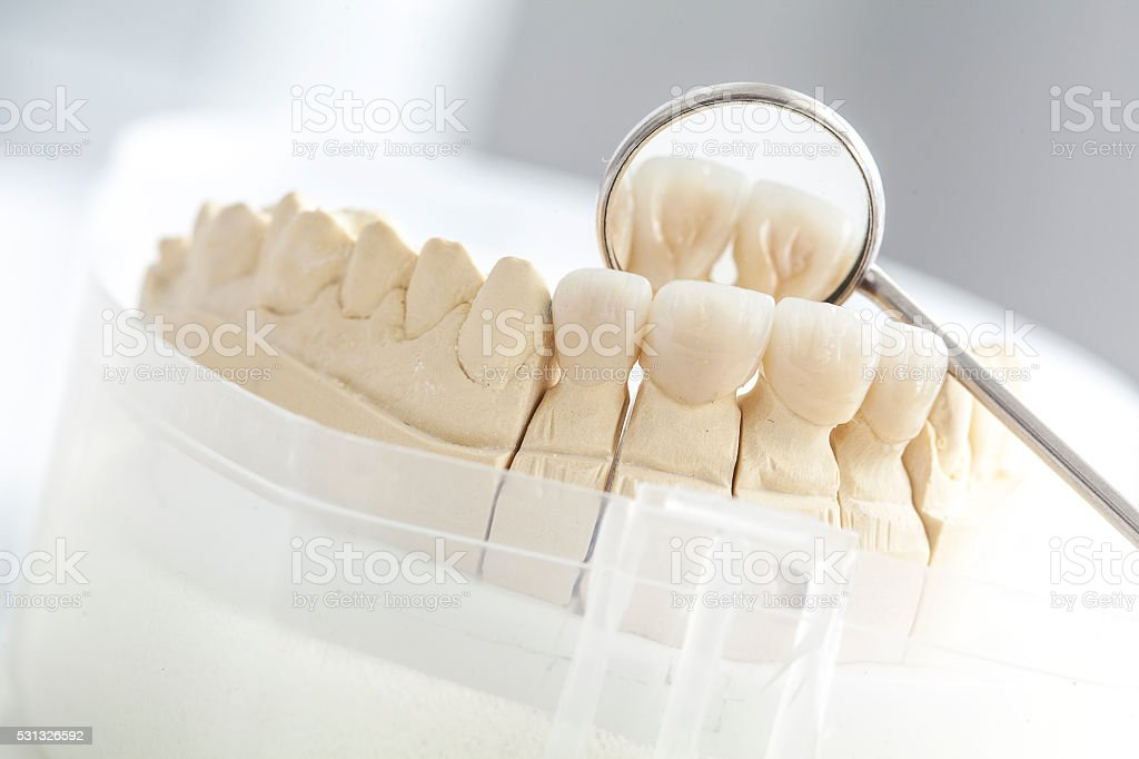Ceramic bridge on plaster model stock photo