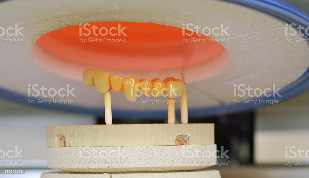 ceramic compound crowns in furnace royalty-free stock photo