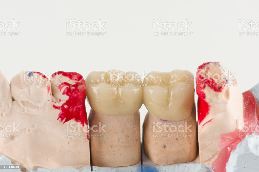 ceramic crowns to try on a tooth model stock photo