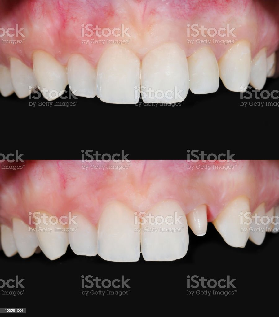 Ceramic Dental Crown stock photo