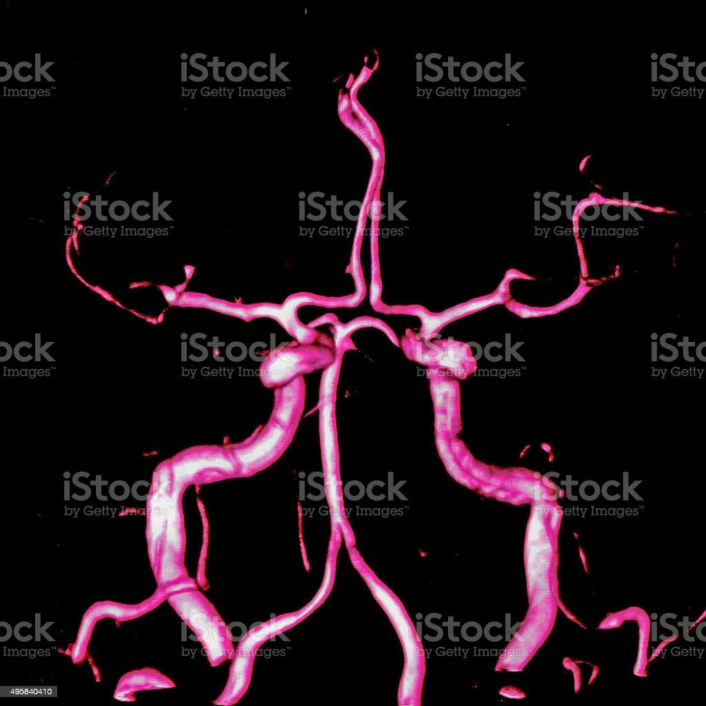 Cerebral arteries, MR angiography stock photo