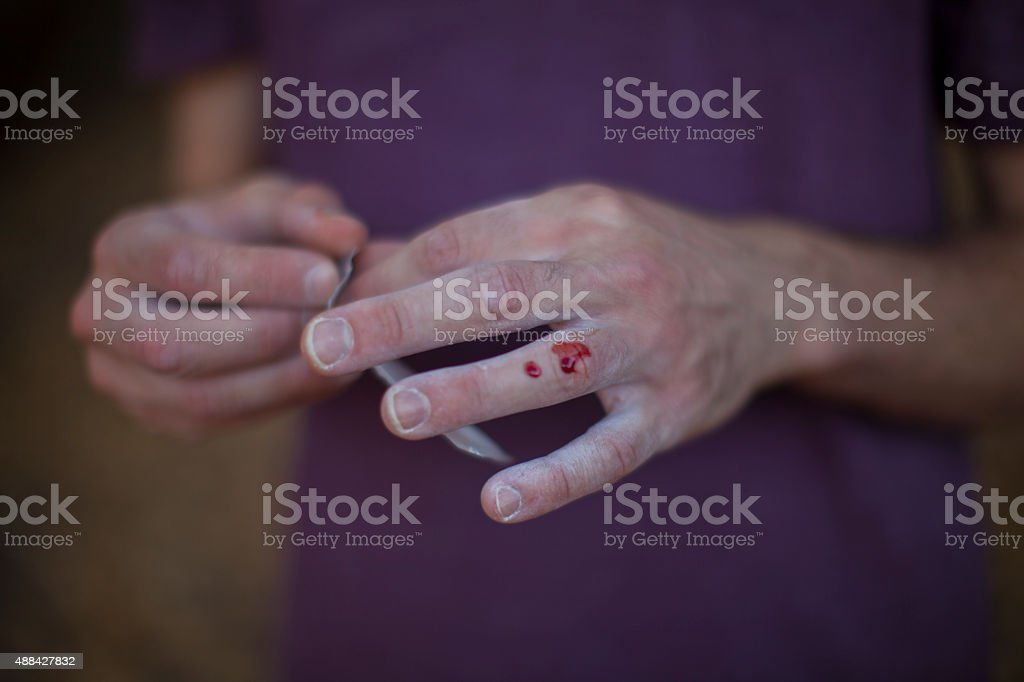 Chalky Bleeding nuckle stock photo
